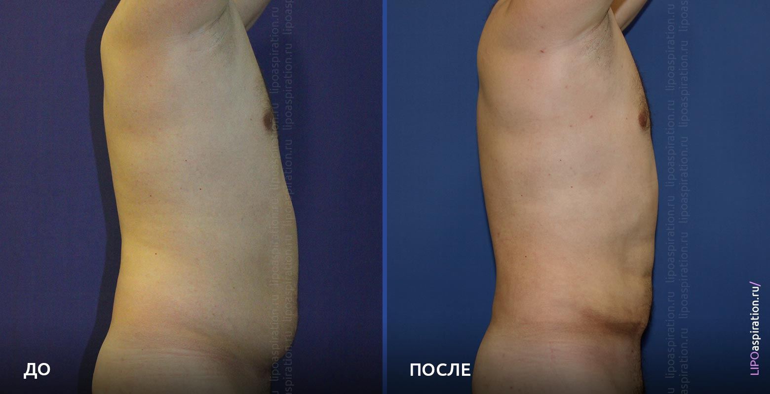 фото: до и после VASER-липосакции