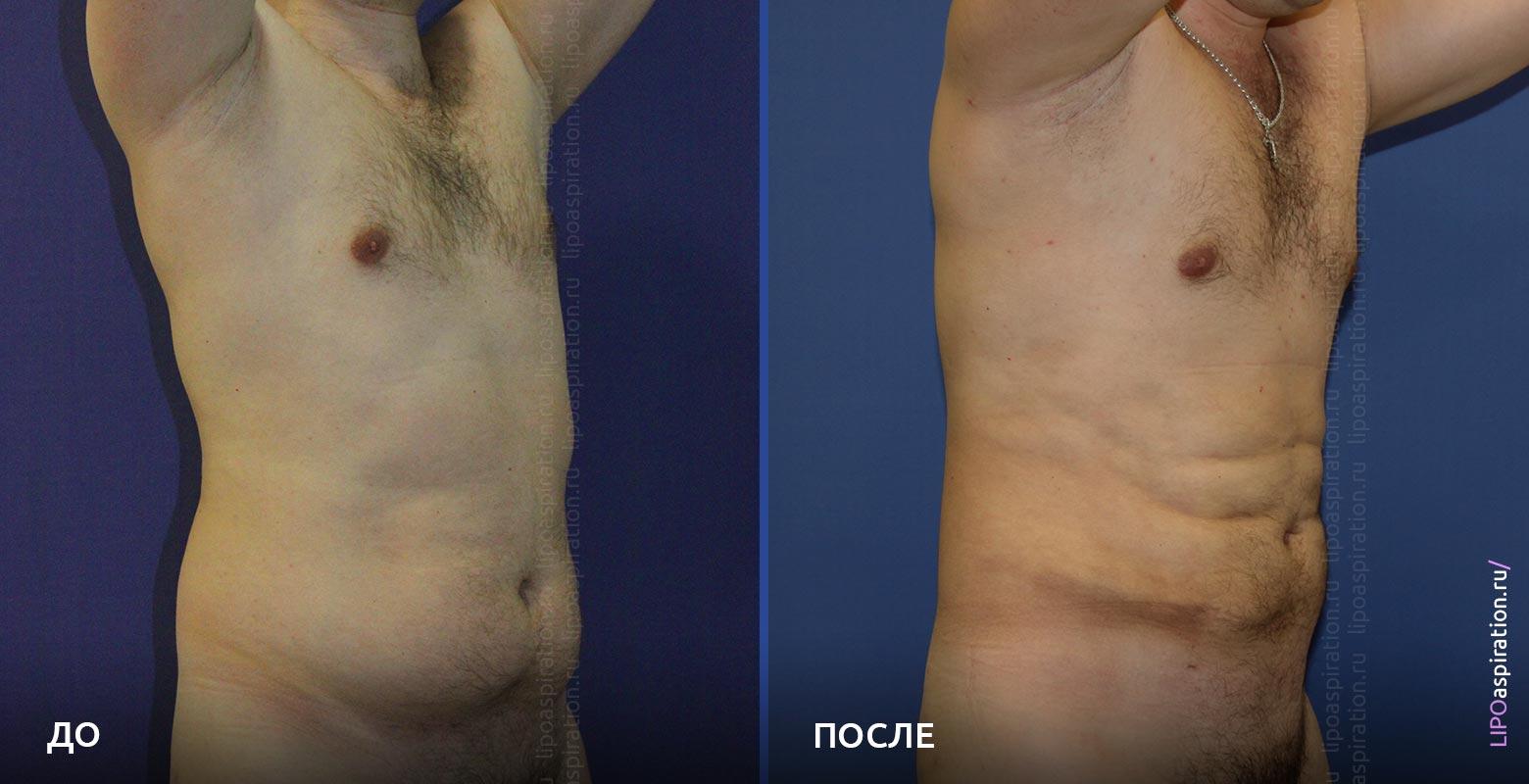 фото до/после липосакции живота у мужчины