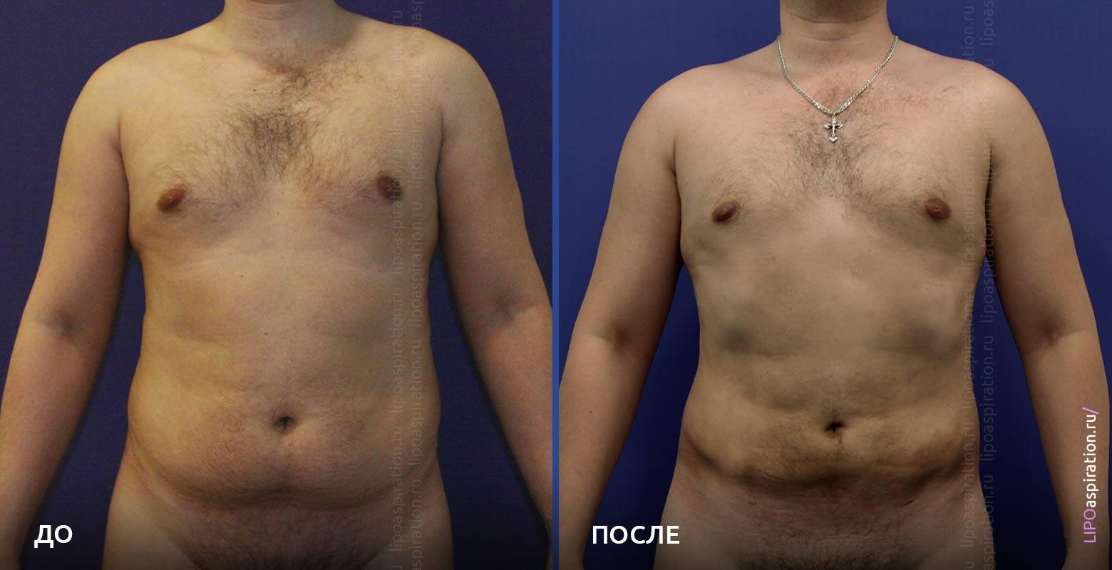 фото: до и после липосации у мужчин