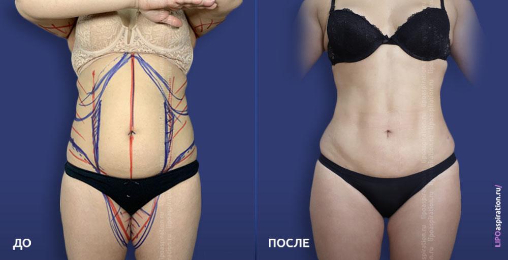 фото до/после проведенной операции по липосакции